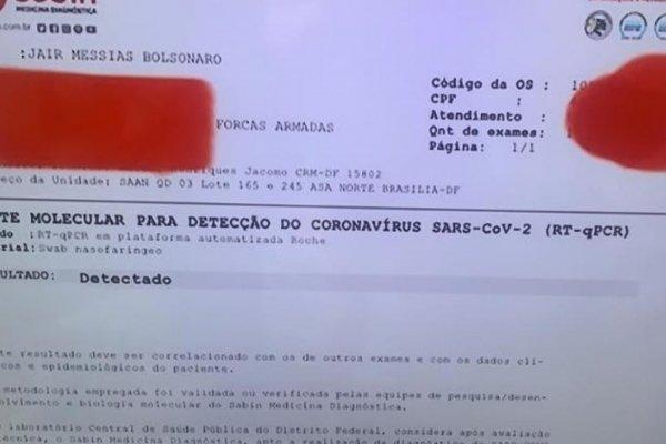 [Pela primeira vez, Bolsonaro usou nome verdadeiro em exame para covid-19]