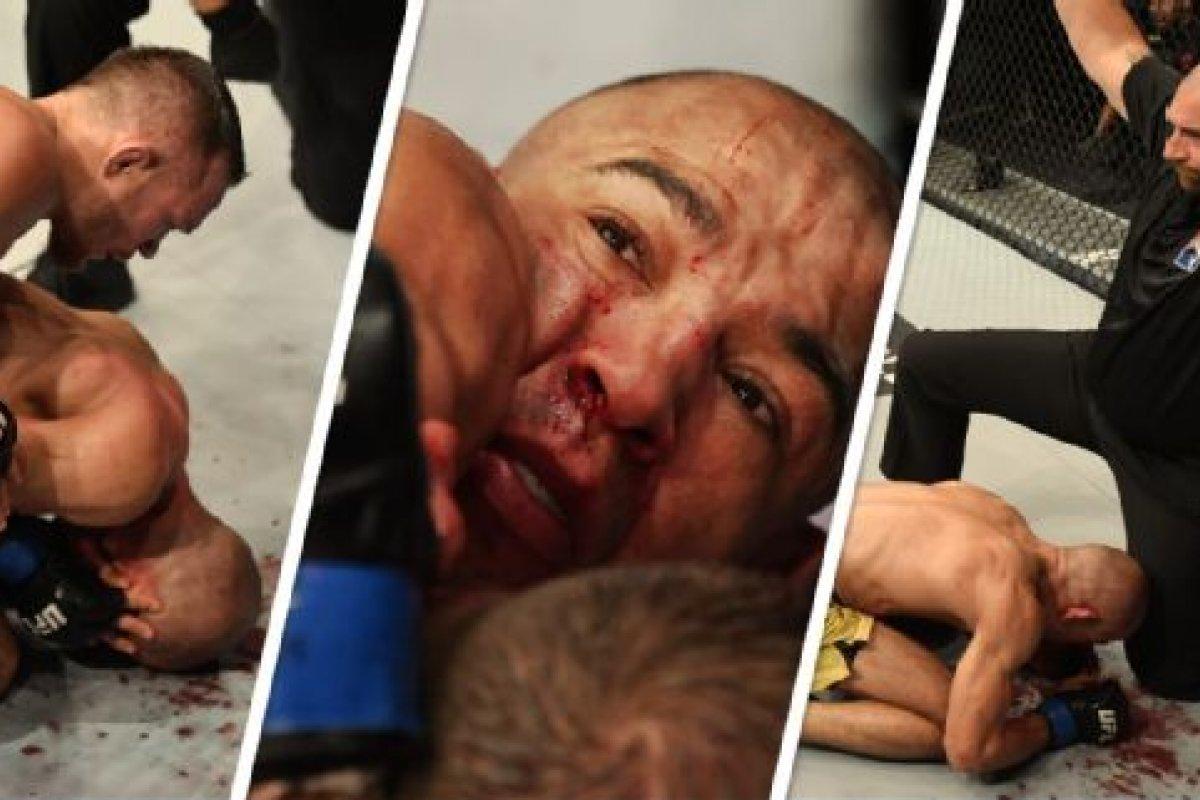 [Em luta pelo UFC 251, Aldo leva 62 golpes no rosto em três minutos; postura do árbitro é criticada]