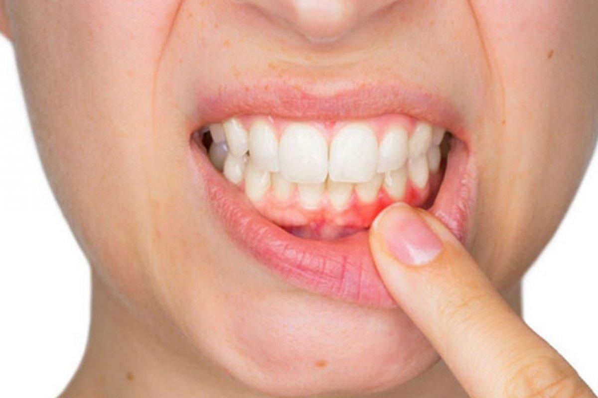 [Pessoas que têm periodontite podem apresentar casos graves da covid-19, diz estudo]