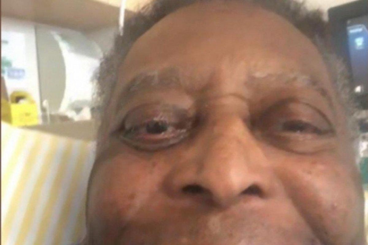 [Pelé recebe alta de UTI e vai para quarto após retirar tumor no cólon]